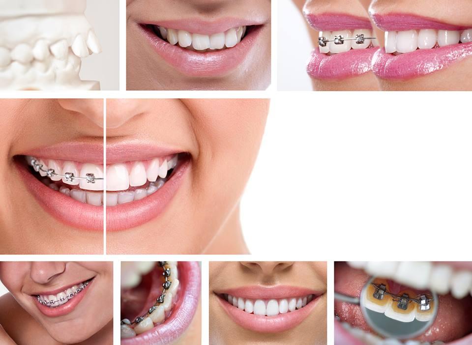 Ortodontie Sector 3 Piata Muncii, Dristor, Titan,  - Baba Novac