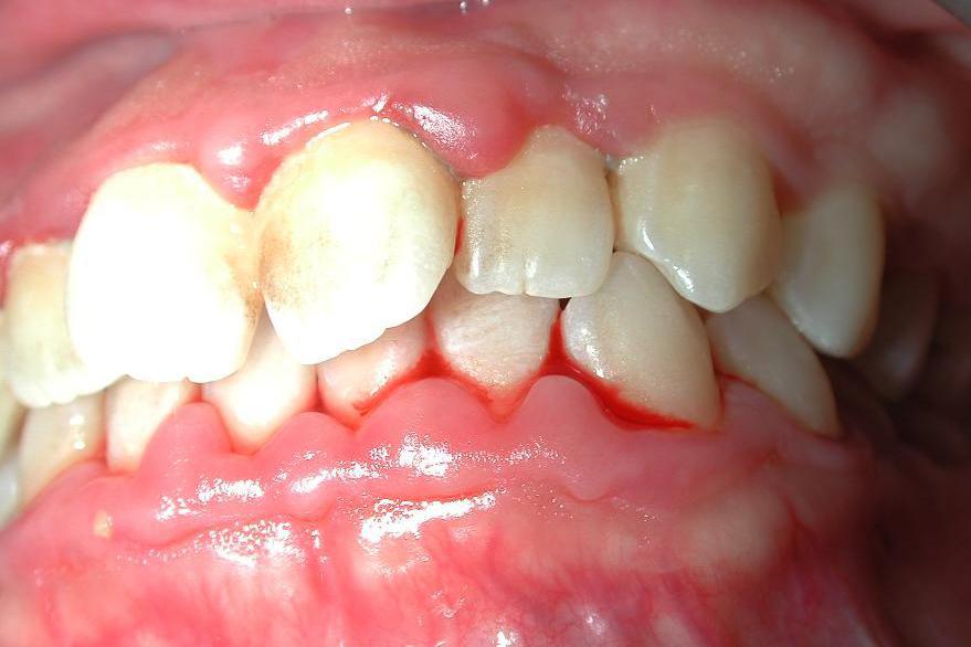 Parodontologie Sector 3 Piata Muncii, Dristor, Titan,  - Baba Novac
