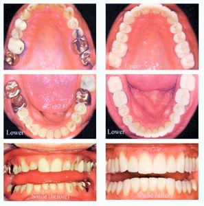 full-mouth-rehab-before-after