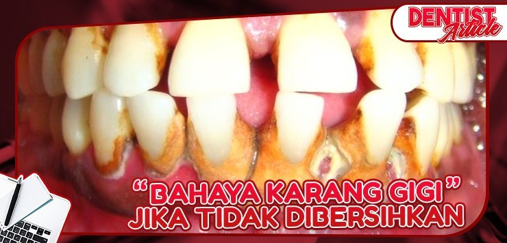 Bahaya Karang Gigi - Dental Universe Indonesia