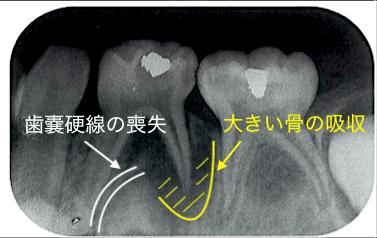【小児の歯内療法】抜歯基準のコツは骨の吸収程度⁉️ 感染根管治療 vs 抜歯