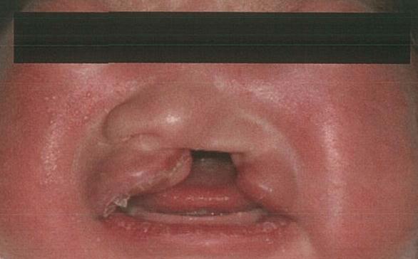 【口腔外科学】先天異常:唇裂