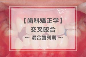 歯科矯正学:交叉咬合