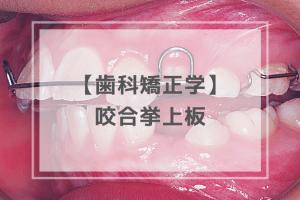 歯科矯正学:咬合挙上板
