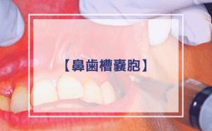 【口腔外科学】嚢胞:鼻歯槽嚢胞(Klestadt嚢胞)