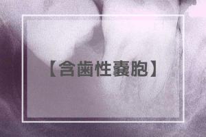 含歯性嚢胞