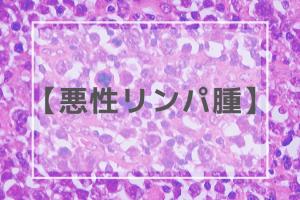 【歯科医師国家試験】悪性リンパ腫