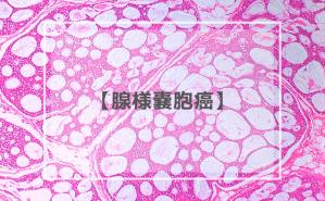 腺様嚢胞癌