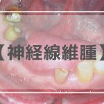 神経線維腫