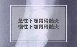 急性下顎骨骨髄炎・慢性下顎骨骨髄炎