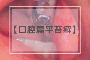 口腔扁平苔癬
