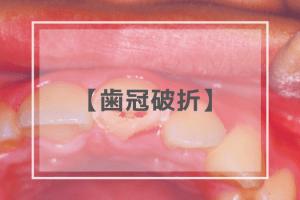 歯冠破折・歯根破折