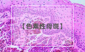 色素性母斑