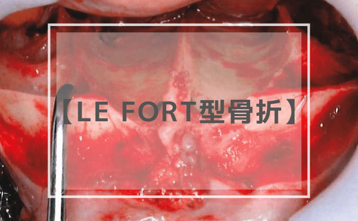 Le Fort型骨折
