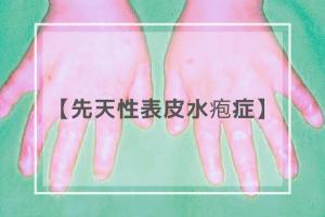 先天性表皮水疱症