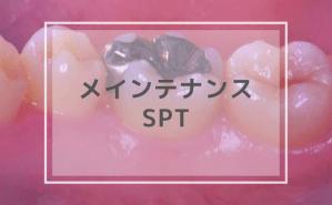 メインテナンス・SPT