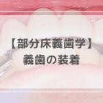 部分床義歯学:義歯の装着