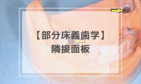 部分床義歯学:隣接面板