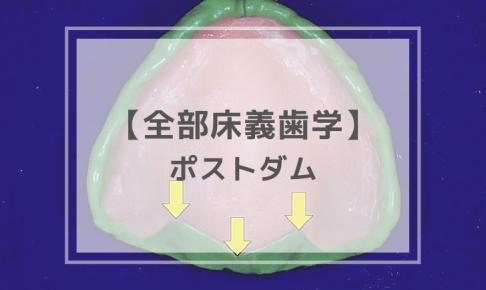 全部床義歯学:ポストダム