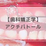 歯科矯正学:アクチバトール