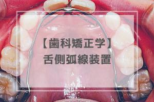 歯科矯正学:舌側弧線装置