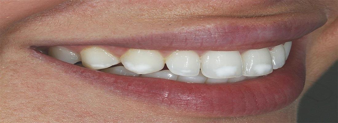 Pigmentatiepreventie van tanden