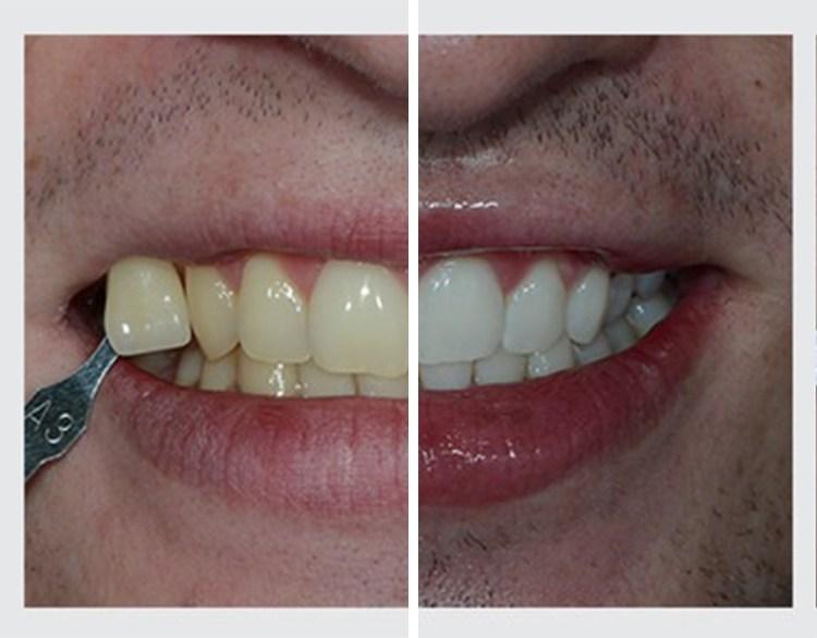 Bielenie zubov Pure Whitening