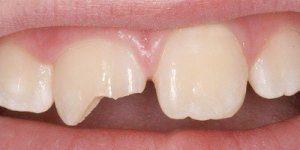 Обломился под корень передний зуб. Когда сломан корень зуба, что стоит делать пациенту? Откололся кусочек переднего зуба – какие варианты
