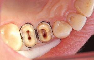 Временная пломба болит зуб при надавливании