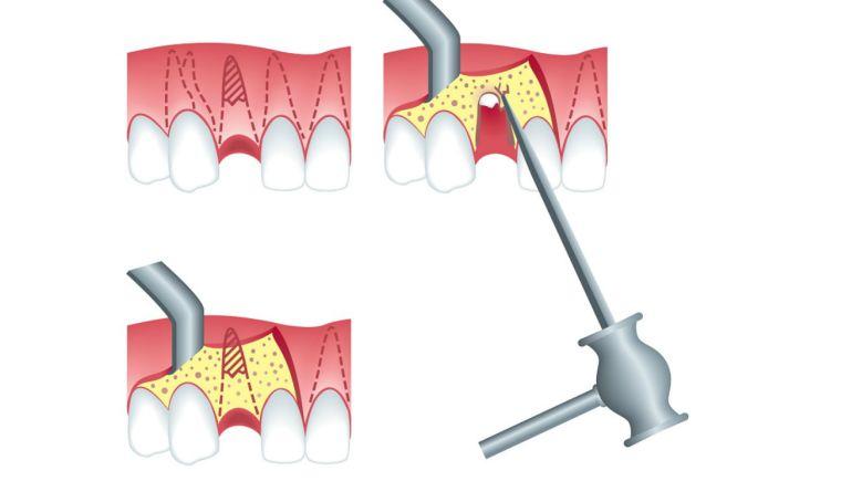 Удаление корней зуба когда коронковая часть разрушена либо на корне воспаление