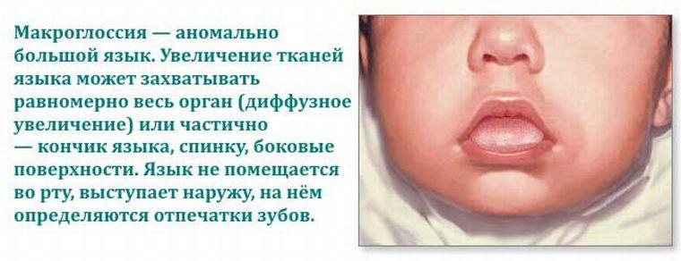 Особенности макроглоссии у детей и взрослых а также какими методами лечат патологию