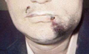 Как распознать вылечить и предотвратить ушибы челюсти