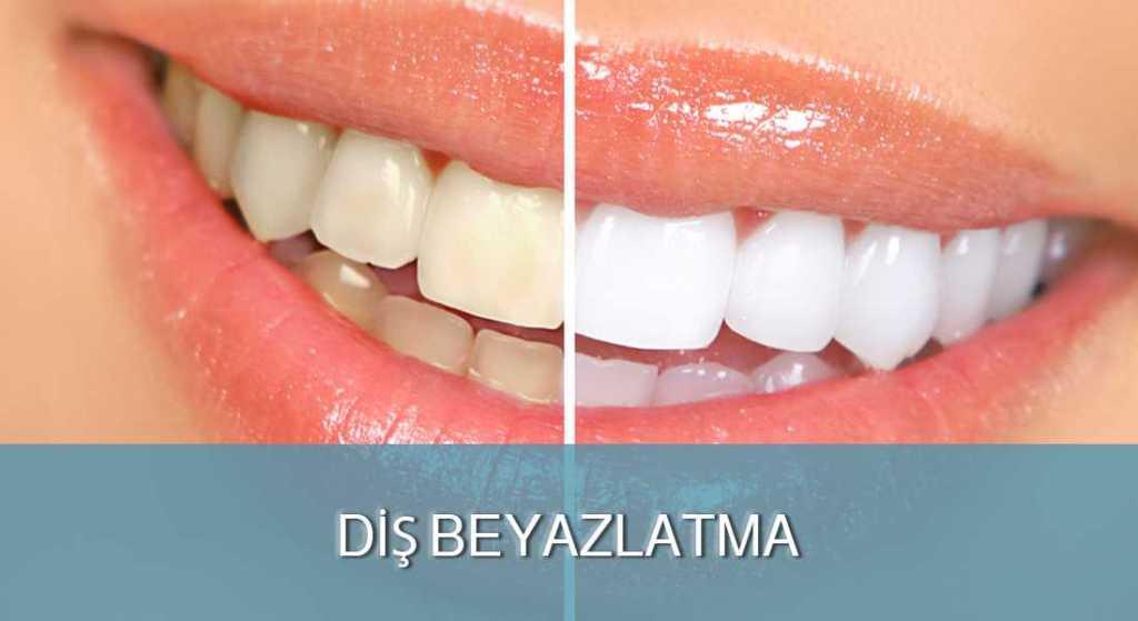Diş Beyazlatma - DENT FOR ALL