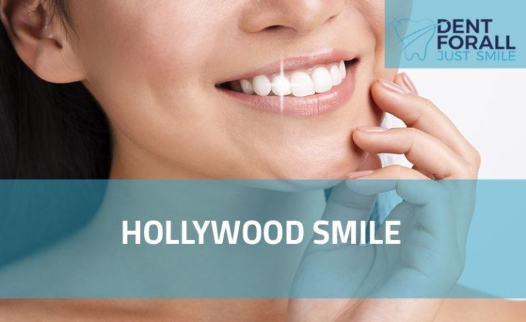 What is Hollywood smile and its implementation reasons