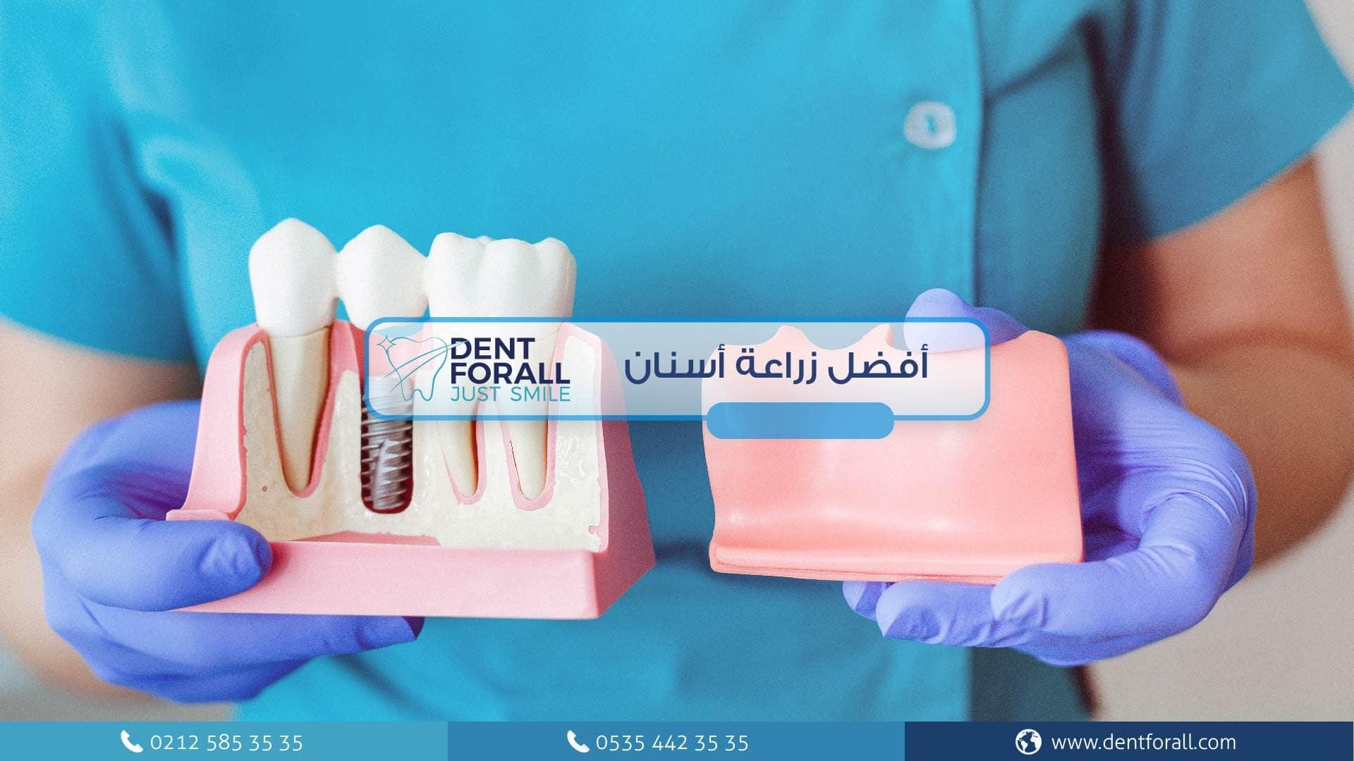 ما هي زراعة الأسنان ومتى يمكن زرعها وما هي مراحل زراعة الاسنان وماذا تحتوي زراعة الاسنان؟
