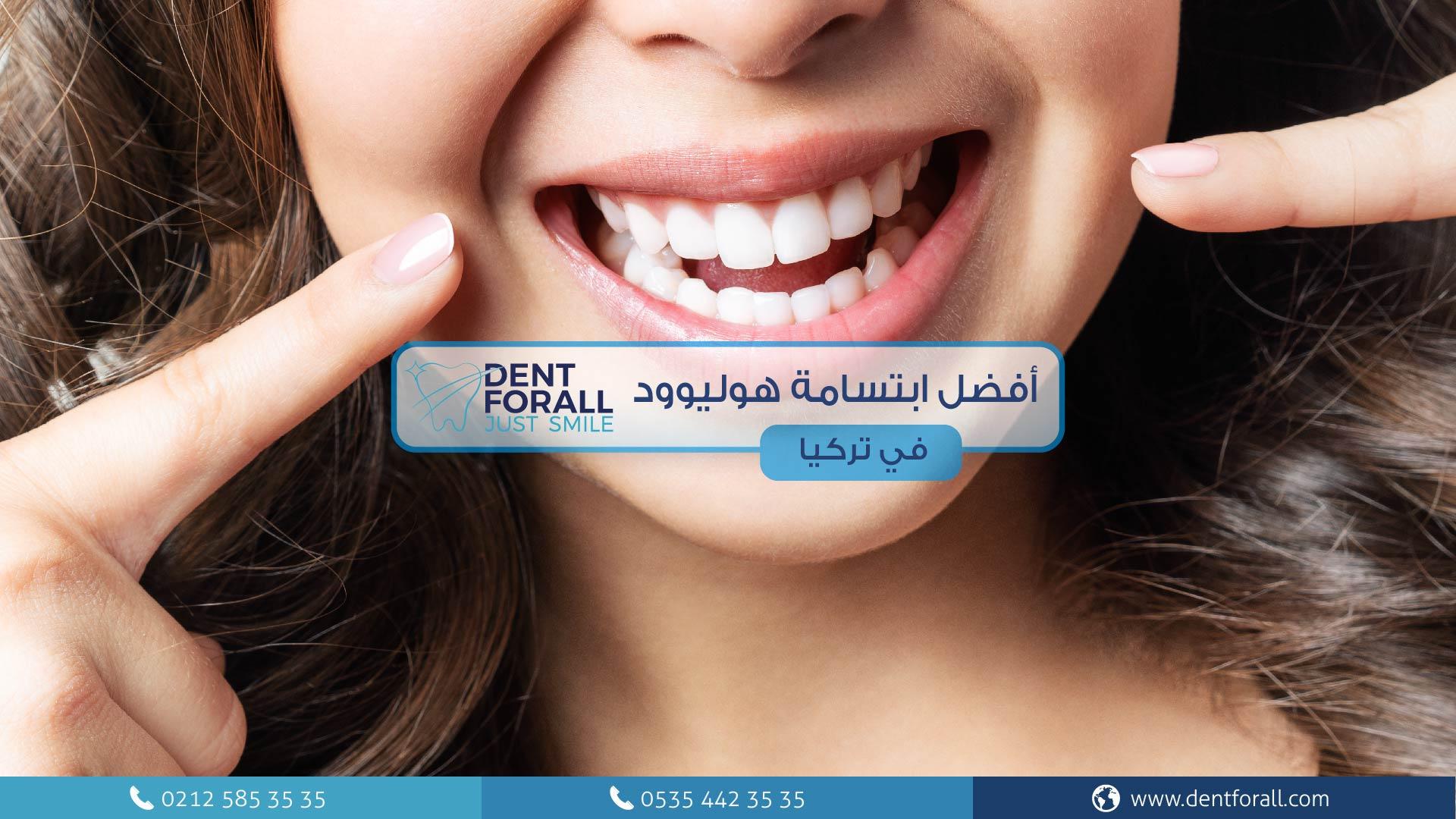 ابتسامة هوليود وأنواع الابتسامات وبعض النصائح للحصول على أفضل ابتسامة