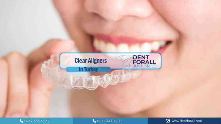 Invisalign,Why can you choose it, what are the benefits and drawbacks