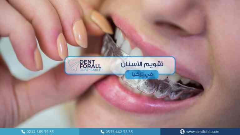 تقويم الاسنان في تركيا