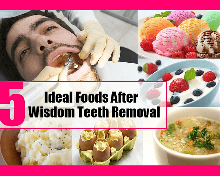 Foods You Can Eat With Your Wisdom Teeth Out