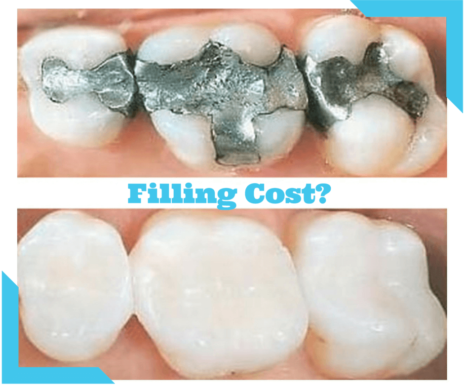 How Much Does a Dental Filling Cost Worldwide with
