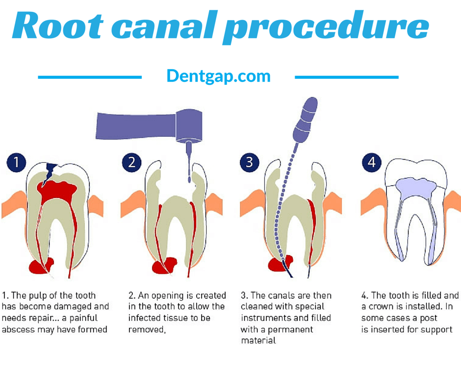 Root Canal Cost: Ways to Get Discount up to 50%