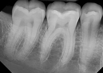 DentiMax-Dental-Xray-Gallery-18-orig