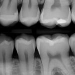 dental xray image