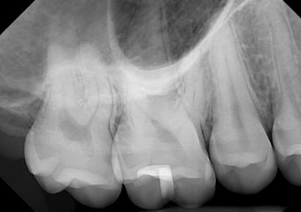 DentiMax-Dental-Xray-Gallery-25-orig