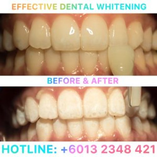 effective-dental-whitening-jpeg