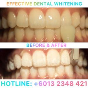 effective-dental-whitening-jpeg