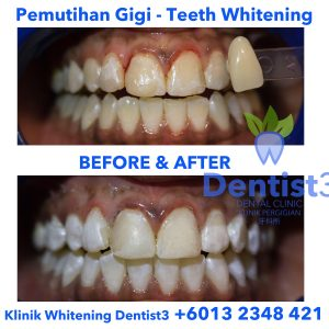 klinik-whitening-dentist3