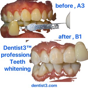 nicholson-dental-whitening-2018-jpeg