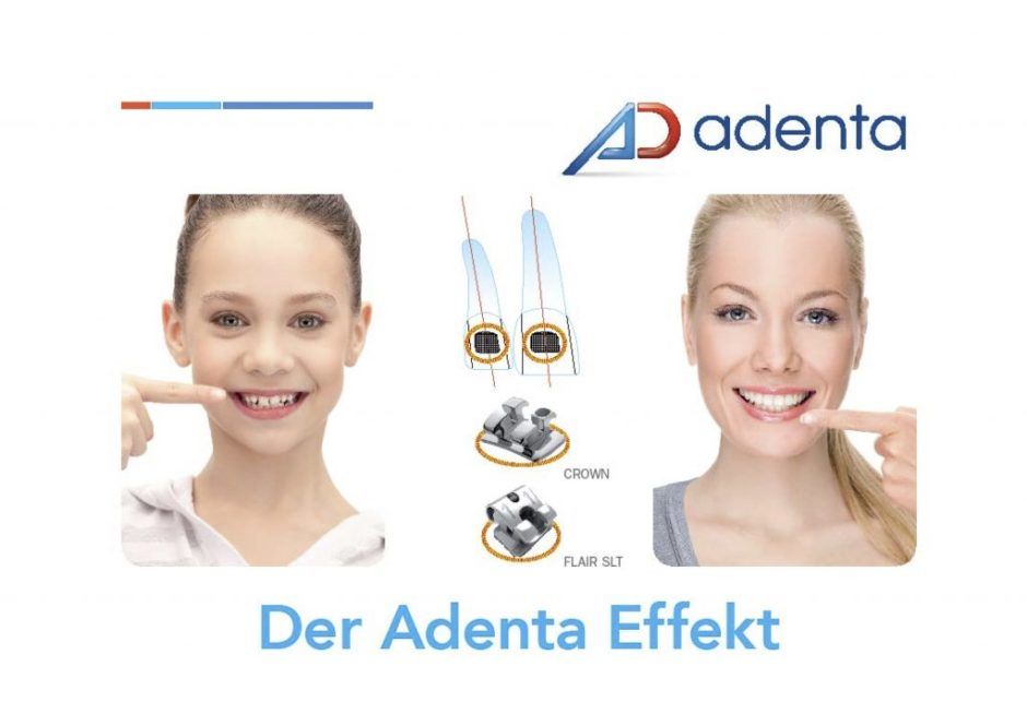 Adenta CROWN Bracket Placement System