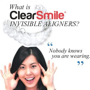 clear-smile-clear-aligners